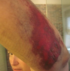 Arm after bike crash